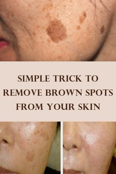 As we age, brown spots can appear on the skin. These are called age spots or liver spots. They appear like flat brownish-colored skin discolorations, which can appear on the face and other locations of the body. Age Spots On Face, Brown Spots On Face, Skin Spots, Dark Spots, Face Age, Facial Brown Spots, Natural Skin, Natural Health, Natural Toner