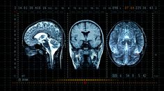 brain-mrt-scan-display-video-id101240825 (640×360)