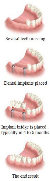Multiple Dental Implants for Several Missing Teeth. Teeth In A Day, Missing Teeth, Dental Procedures, Cosmetic Dentistry, Dental Implants, Surgery, Houston, Tourism, Wedding Rings
