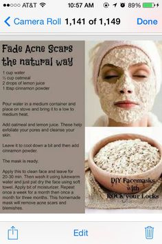 ✨✨✨Fade Acne Scares The Natural Way✨✨