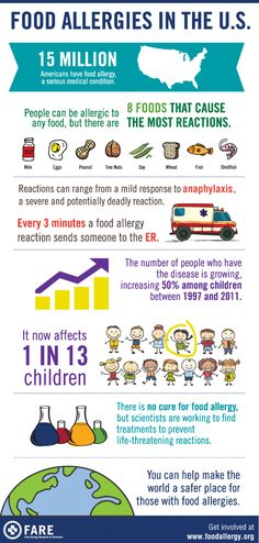Food Allergies in the US Infographic. Food Allergy Awareness Week. Peanut allergy, tree nut allergy.