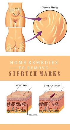 Stretch marks can be found all over the body, and they affect both men and women. The main causes of stretch marks are pregnancy and rapid weight gain or weight loss. Other factors that can cause stretch marks include stress, heredity and rapid growth. Stretch Mark Removal, Stretch Marks, Hair Loss Remedies, Home Remedies, Natural Remedies, Hair Loss Causes, Cellulite Remedies, Hair Loss Women, Beauty