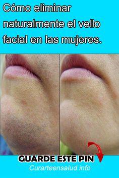 Cómo eliminar naturalmente el vello facial en las mujeres. #Cómo #eliminar #naturalmente #vello #facial #mujeres #remedios #bienestar #belleza