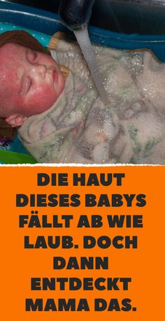 Die Haut dieses Babys fällt ab wie Laub. Doch dann entdeckt Mama DAS. Rosacea, Baby Kind, Baby Party, Sweet Life, Healthy Tips, Kids And Parenting, Home Remedies, Helpful Hints, Medicine