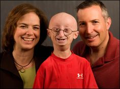 17-year-old young boy #SamBerns, an inspirational teen for having an extremely positive outlook towards life, died on Friday evening on January 10. Sam was suffering from Progeria, a rarest of rare genetic disease that accelerates early aging and causes premature death. Don't forget to watch his speech at Ted