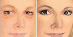 How to Get Rid of Drooping Eyelids with This Natural Remedy! Beauty Care, Beauty Skin, Health And Beauty, Face Skin, Face And Body, Eye Make, Make Up, Beauty Secrets, Beauty Hacks