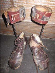 Child's polio braces - just struck me as interesting---Here are my ugly brown shoes I had to wear wi Vintage Nurse, Vintage Medical, End Polio Now, Tap Shoes, Me Too Shoes, Orthotics And Prosthetics, Retro Renovation, Medical History, Weird Pictures