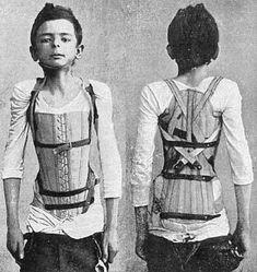 Victorian medical corset