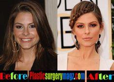 maria menounos plastic surgery - Google Search Maria Menounos, Plastic Surgery, Photoshop, Google Search, Celebrities, Beauty, Celebs, Beauty Illustration, Celebrity