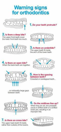 DISCOVER DENTISTS® Warning Signs for Orthodontics http://DiscoverDentists.com
