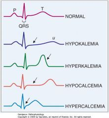 hypokalemia hyperkalemia ecg - Google Search