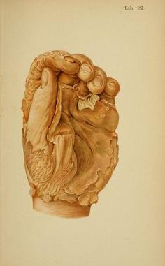 Immersion changes to the hand (after several weeks in this case) - Atlas of legal medicine (von Hofmann 1898).