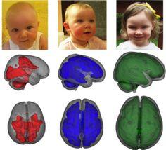 La lactancia materna impulsa rápidamente el desarrollo del cerebro de los bebés