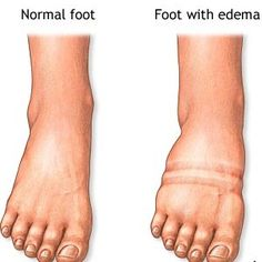 Effective Home Remedies For Edema