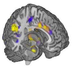 First objective measure of pain discovered in brain scan patterns / Per la prima volta il dolore e' stato misurato in maniera oggettiva (senza chiedere al paziente) analizzando la configurazione delle zone del cervello attivate.