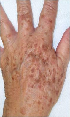 Brown Age Spots On Hands See this age-spot information and how people have resolved their problems.