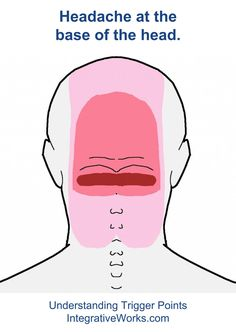 Natural Headache Remedies fi-semispinalis-capitis-bilateral - Client's Description This pattern creates a strong band of tension along the base of the head that comes up over the back of the head. It comes from the semispinalis cervicis muscle. Headache Back Of Head, Neck Headache, Migraine Relief, Pain Relief, Tension Headache Relief, Migraine Diet, Trigger Point Therapy, Head Pain, Migraine