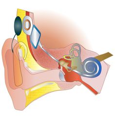 A diagram of cochlear implant - cross section, inside view, schematic Speech Pathology, Speech Language Pathology, Speech And Language, Speech Therapy, Speech And Hearing, Hearing Aids, Hearing Impaired, Deaf Culture, Sign Language
