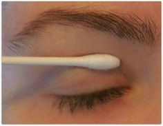 Egg White ~ A Natural Remedy for drooping eyelids - apply with Q-tip.