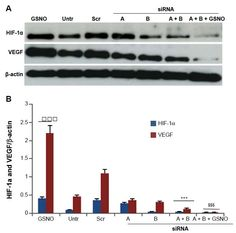 Figure 5 Effects of GSNO on expression of HI F-1α and VEG F in HI F-1α-silenced endothelial (bEnd3) cells.