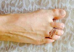 Este truco seguramente dará mucho que hablar en toda la comunidad femenina, la mal llamadas sexo débil, especialmente aquellas que no quieren usar tacones altos por que le causa dolor en los pies. De hecho, se puede reducir el dolor y entumecimiento en los dedos, y evitar el caminar doloroso con un simple truco. Los …