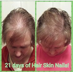 Before and after HSN. This product works magic. It's only $33 loyal costumers $99 retail. Get yours at GYPSYWRAPPERS.COM
