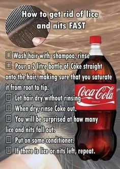 Lice removal with Coca Cola
