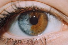 Woman with Segmental heterochromia, when areas of the same iris are different in color.