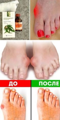 Best 7 Mega Recipe You get rid of the nail fungus – SkillOfKing. Natural Health Remedies, Herbal Remedies, Healthy Eating Tips, Healthy Recipes, Gym Workout For Beginners, Gewichtsverlust Motivation, Free To Use Images, Arthritis Treatment, Diy Skin Care