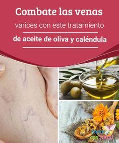Combate las venas varices con este tratamiento de aceite de oliva y caléndula Tanto la #caléndula como el aceite de oliva cuentan con propiedades #antiinflamatorias y tonificantes. Combinados en un único tratamiento son ideales para mejorar el aspecto de las #varices #RemediosNaturales