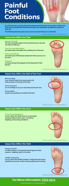 Here is a list of painful foot conditions that may be affecting you.