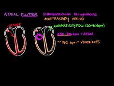 Atrial flutter (AFL) | Cardiac dysrhythmias and tachycardias | Khan Academy