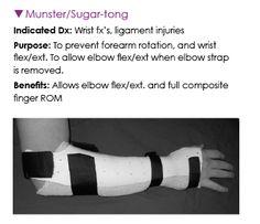 Radial Nerve Palsy Splint Pulvertaft Splinting Pts
