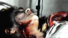 Spinal Cord Trauma Patient No.22 JoDi War Photography