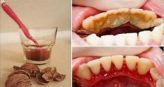 """This article will introduce you the procedure of oil pulling or """"kavala"""" or """"gandusha"""" as it is known in the Ayurveda medication. It is an antiquated dental strategy which includes rinsing a tablespoon of oil in your mouth on an unfilled stomach for around 15-20 minutes. The procedure flushes out poisons from the body and enhances your oral and general wellbeing. On the off chance that you need to detoxify and brighten your teeth in the meantime, this oil pulling system is the best thing for ... Health Remedies, Home Remedies, Natural Remedies, Gum Health, Oral Health, Bad Breath, Health Advice, Healthy Tips, Healthy Food"""