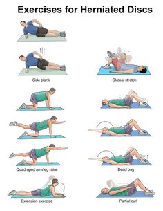 Exercise for Herniated disc/ Exeercise for disc prolapse/exercise fo slipped disc.
