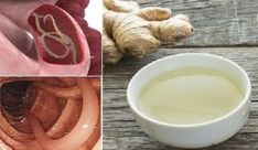 Symptoms of Parasite Infections and Natural Remedy To Detox Your Body! Healthy Eating Recipes, Healthy Drinks, Healthy Life, Eat Healthy, Les Parasites, Ginger Water, Military Diet, Home Health, Garlic