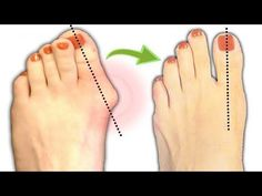 How To Treat Bunions Naturally By As Simple As Following This Few Tips! - YouTube
