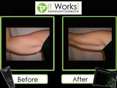It Works body wraps before and after. Get a set of four for only $59 as a loyal customer  Wrapwithliv.myitworks.com