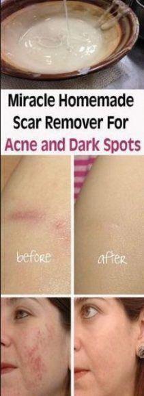 Nails Dark Skin Acne Scars 35 Ideas #nails #skin #OrganicHairShampooHairLoss #OilForHairLoss