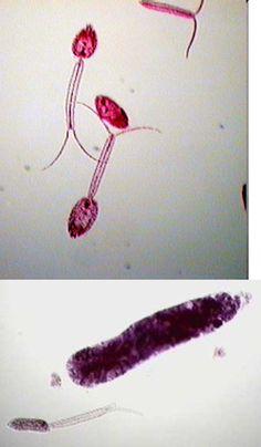 Domain: Eukarya ....... Kingdom: Animalia ....... Phylum: Platyhelminthes ....... Class: Trematoda ....... Genus: SCHISTOSOMA HAEMATOBIUM ....... -cercaria; bulgy form is redia; does NOT cause swimmers itch; causes schistosomiasis; PARASITIC
