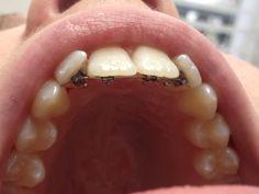 Ook jouw tanden hebben recht op orthodontie. Een stralende lach is de ...: https://www.pinterest.com/pin/321725967106447400