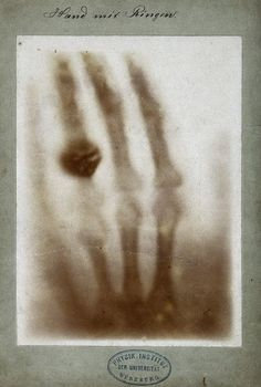Mrs. Röntgen's hand, 1895. The first x-ray taken of a human body.