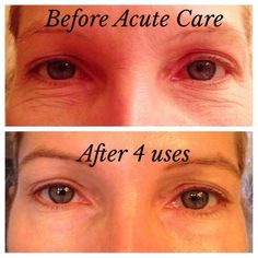 I show before and after images of my friends because my skincare company REALLY WORKS AND TRANSFORMS YOUR SKIN, does your skincare?? No it doesn't, think about that..Dermatological products are clinically proven to work & give 60 day money back!! Get great results before the holidays start today! You won't regret it! Contact me!  Take a quick 20 sec questionnaire to get your personalized skin recommendation & entered into a drawing to win a free product!  https://amazingskin4u.myrandf.com