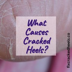 What causes cracked heels?⠀ Find out more by visiting our website!⠀ #bleedingheels #fixfeet #pedicure #toes #sole #crackedheels #fixcrackedheels #heelfissures #dryskinremedies #dryskinproducts #painfulcrackedheels #crackedheelsremedies