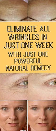 Eliminate All Wrinkles In One Week With This Powerful Natural Remedy ! Eliminate All Wrinkles In One Week With This Powerful Natural Remedy ! Beauty Secrets, Beauty Hacks, Beauty Products, Diy Beauty, Natural Products, Homemade Beauty, Star Beauty, Skin Products, Beauty Ideas