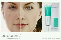 """Have you ever looked in the mirror and declared, """"I should not have wrinkles and spots on the same face!"""" If so you're not alone. Acne: it isn't just for teenagers. In fact, many people are plagued by adult acne into their thirties, forties and even fifties. Dr Gobac Spot TX – anti-bacterial clearing treatment - Regulates oil production - Reduces blemishes - Calms inflammation - Mattifies and lightens  #skincare #acne #DrGobacCosmeceuticals Oil Production, Love Your Skin, Look In The Mirror, Teenagers, Skincare, Face, People, Teen, Skin Care"""