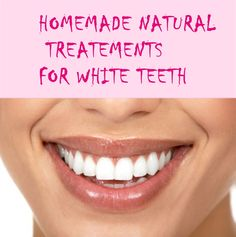 Skin Bleaching Cream Products Home Remedies 35 Ideas For 2019 Bleaching Cream, Natural Beauty Remedies, White Teeth, Healthy Skin, Healthy Life, Teeth Whitening, Beauty Tips, Diy Beauty, Homemade Beauty