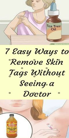 7 Easy Ways To Remove #Skintags Without Seeing A #Doctor #skincare #beauty #healthlife