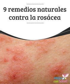 9 remedios naturales contra la rosácea La zona donde es habitual que se desarrolle la rosácea son las mejillas, frente, barbilla, las orejas, zonas cercanas a los ojos, cuello e incluso el pecho.